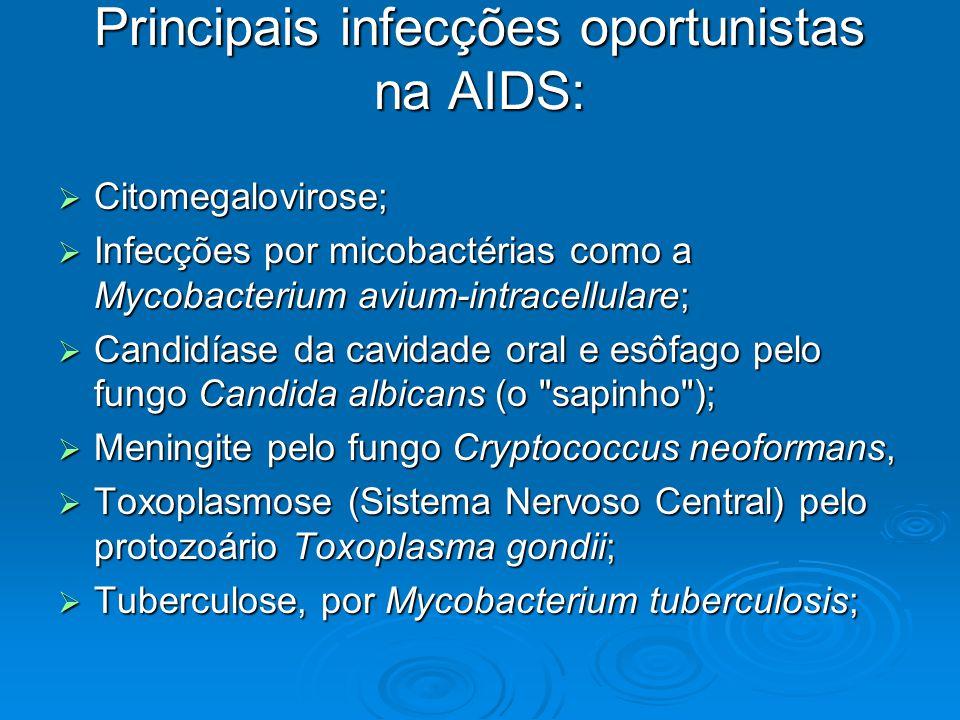 Principais infecções oportunistas na AIDS: