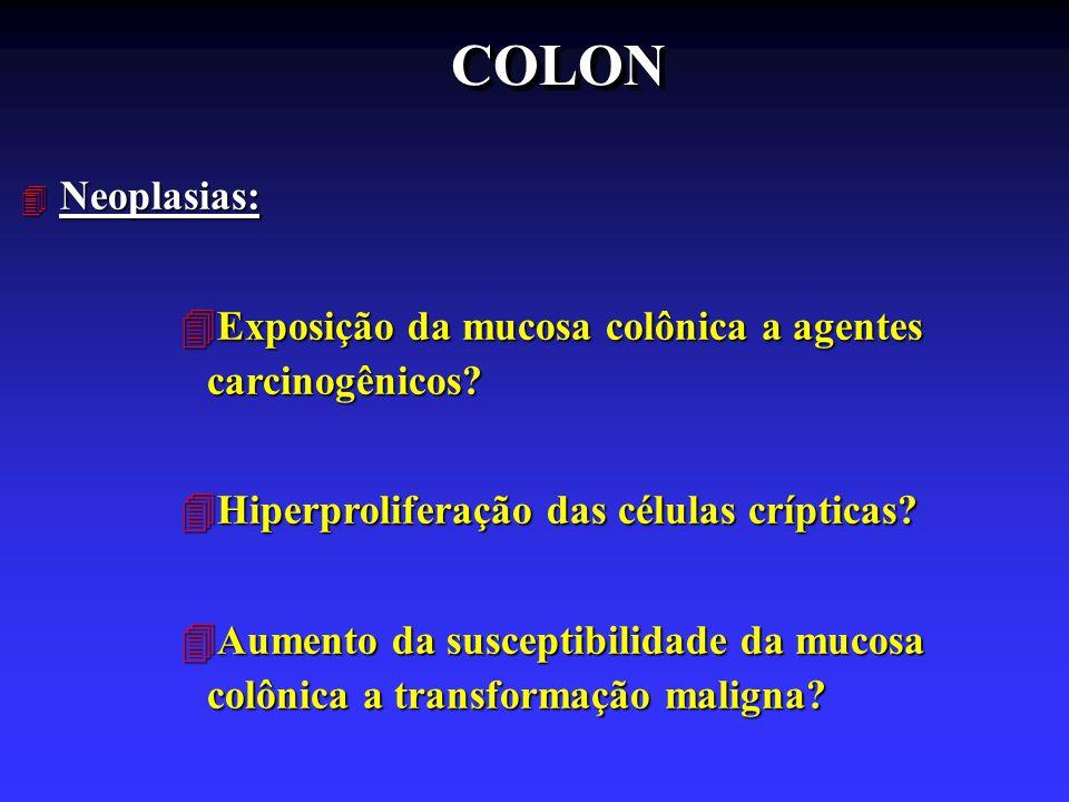 COLON Neoplasias: Exposição da mucosa colônica a agentes carcinogênicos Hiperproliferação das células crípticas