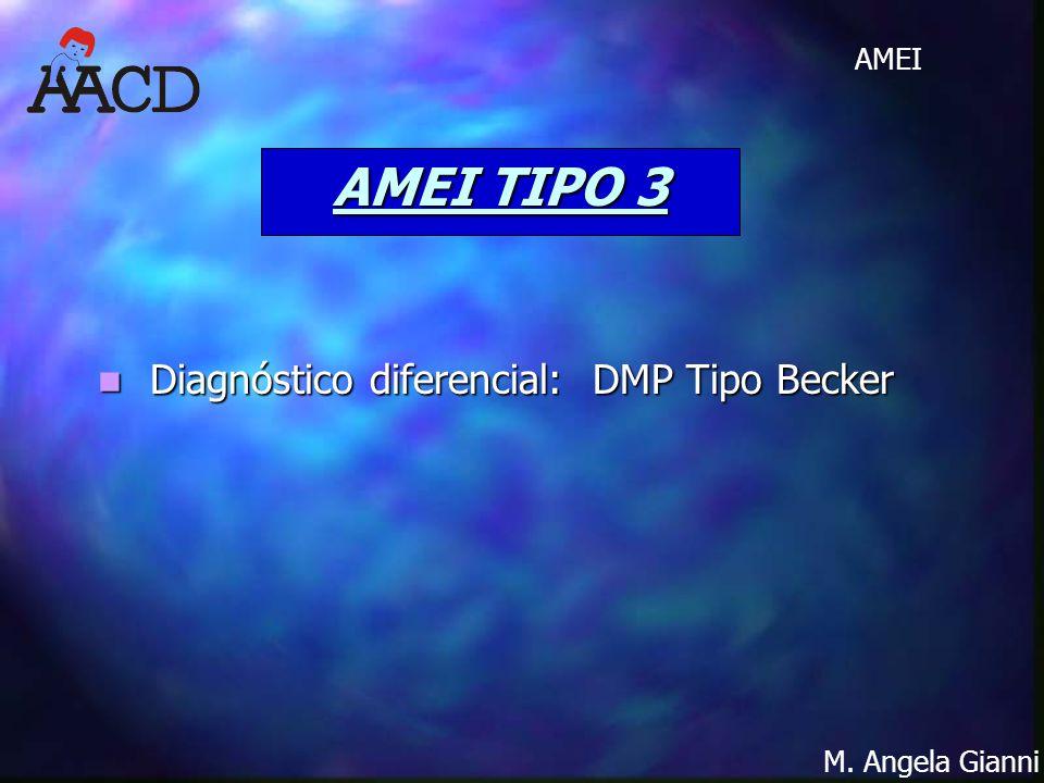 AMEI TIPO 3 Diagnóstico diferencial: DMP Tipo Becker
