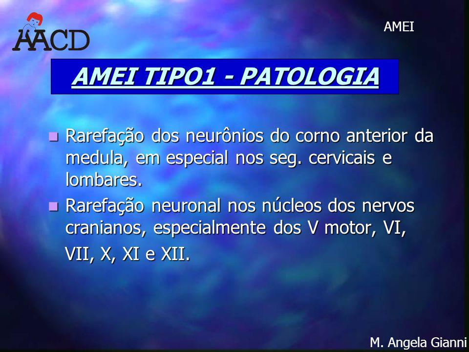 AMEI TIPO1 - PATOLOGIA Rarefação dos neurônios do corno anterior da medula, em especial nos seg. cervicais e lombares.