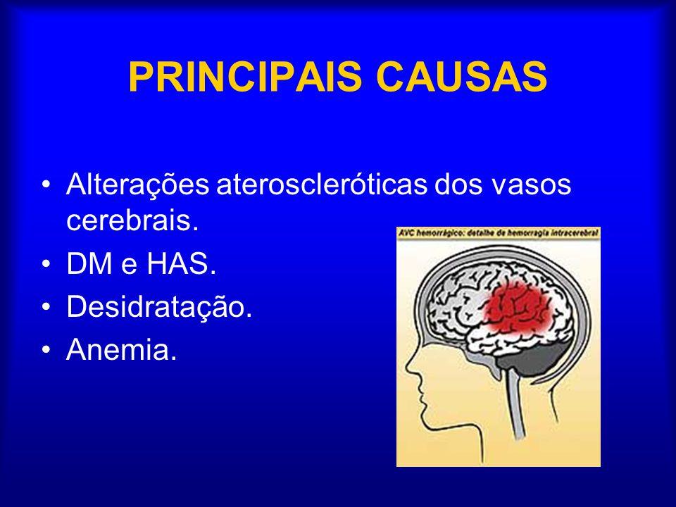 PRINCIPAIS CAUSAS Alterações ateroscleróticas dos vasos cerebrais.