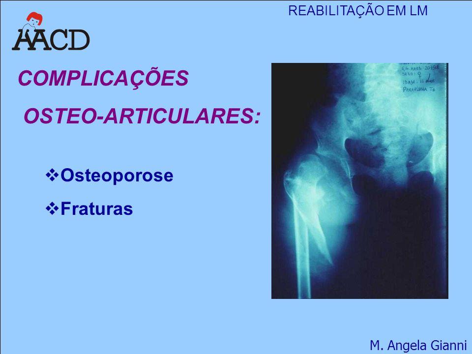COMPLICAÇÕES OSTEO-ARTICULARES: Osteoporose Fraturas