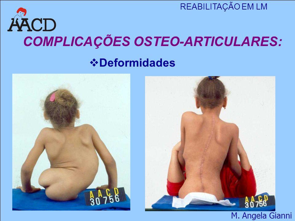 COMPLICAÇÕES OSTEO-ARTICULARES: