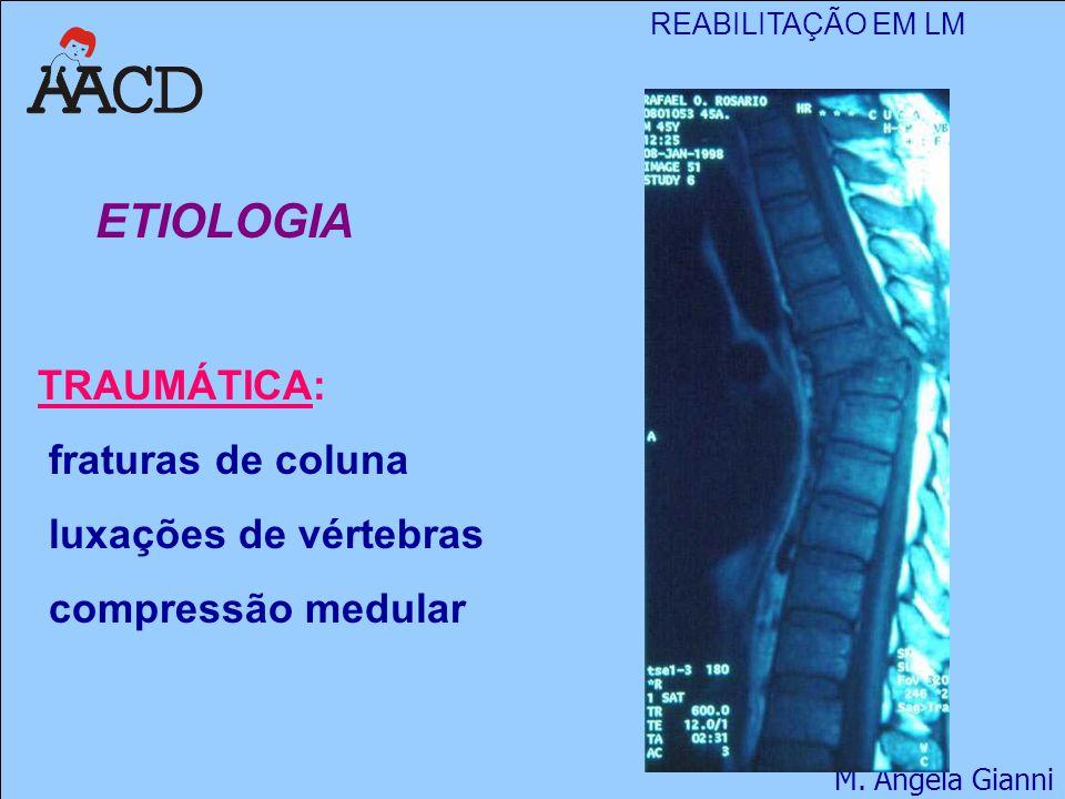 ETIOLOGIA TRAUMÁTICA: fraturas de coluna luxações de vértebras compressão medular