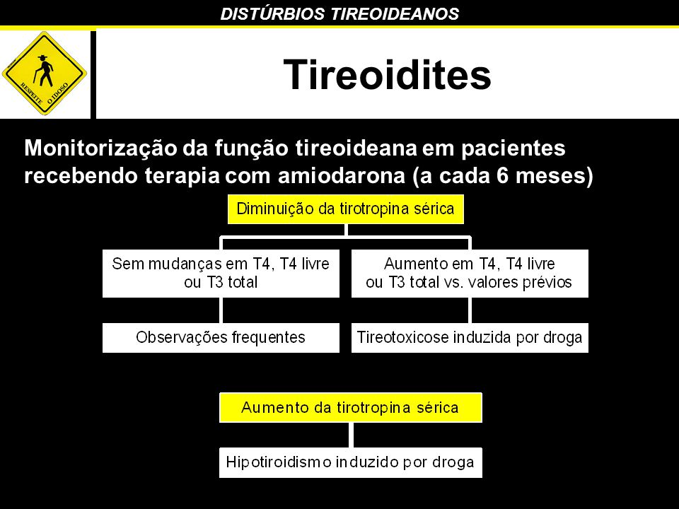 Tireoidites Monitorização da função tireoideana em pacientes recebendo terapia com amiodarona (a cada 6 meses)
