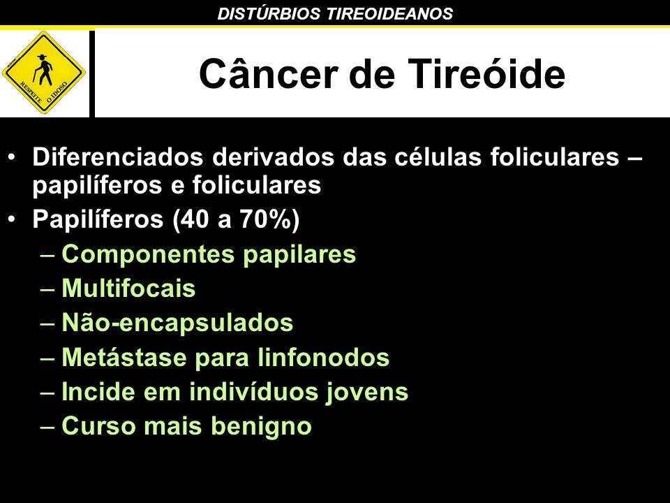 Câncer de Tireóide Diferenciados derivados das células foliculares – papilíferos e foliculares. Papilíferos (40 a 70%)