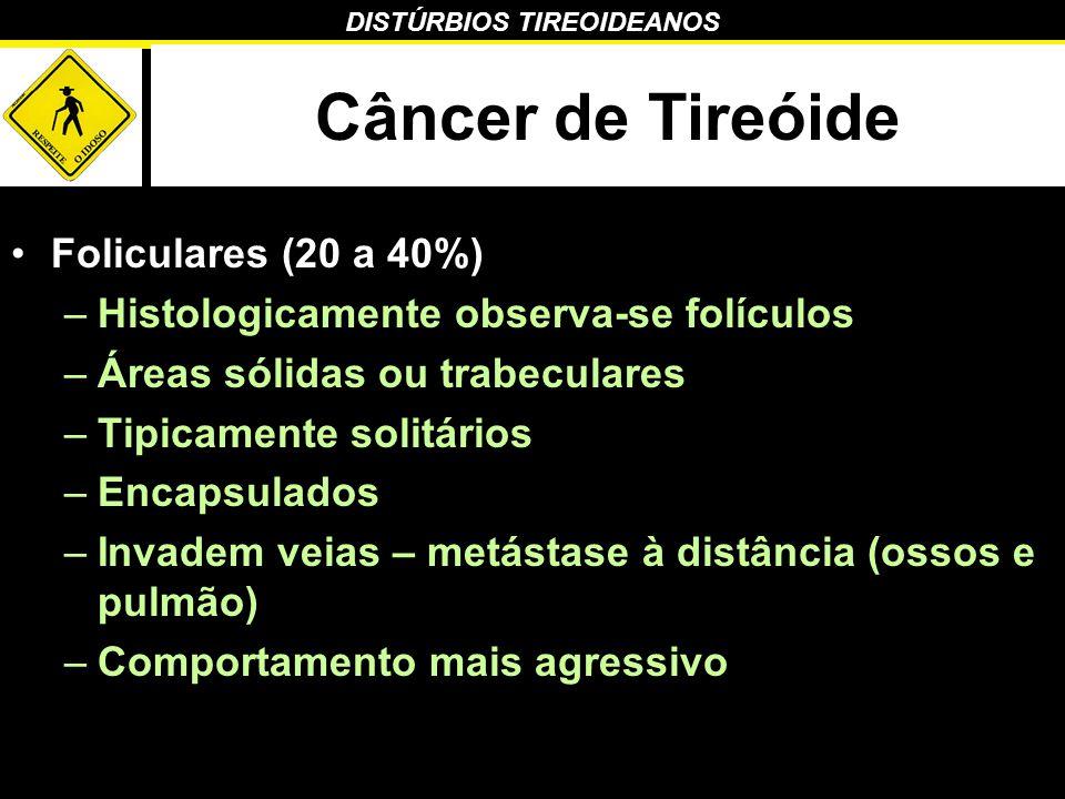 Câncer de Tireóide Foliculares (20 a 40%)