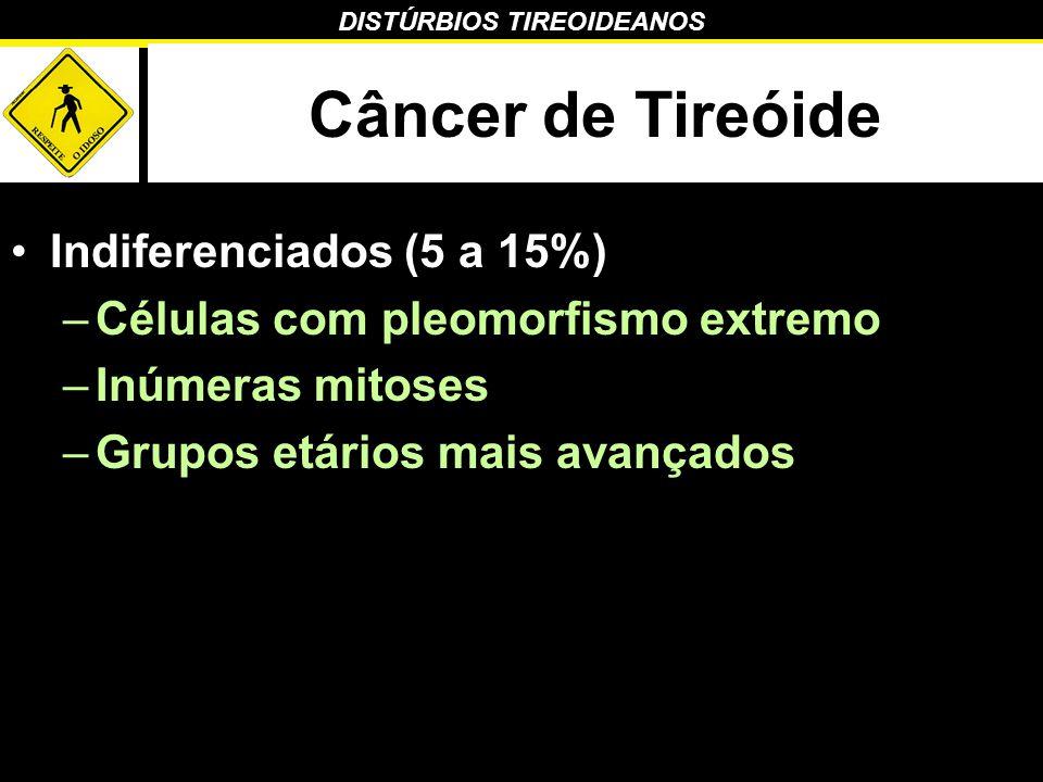 Câncer de Tireóide Indiferenciados (5 a 15%)