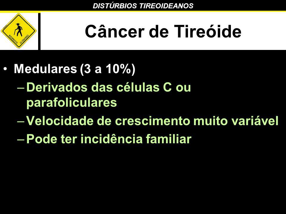 Câncer de Tireóide Medulares (3 a 10%)