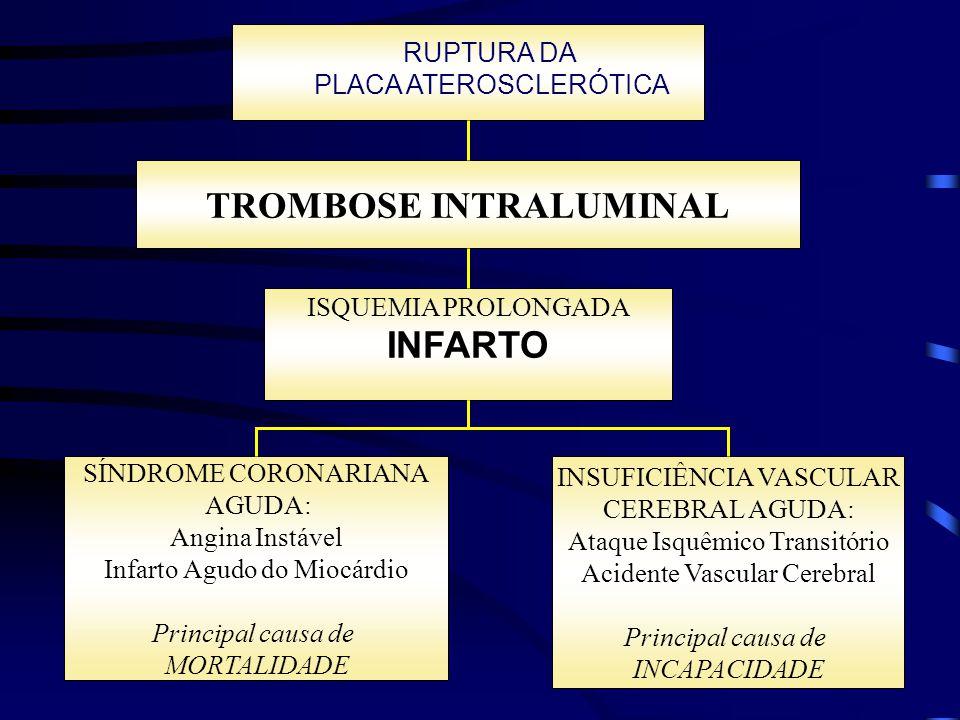 TROMBOSE INTRALUMINAL