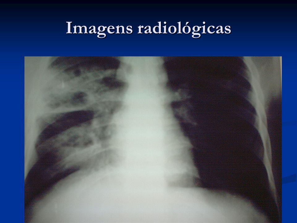Imagens radiológicas