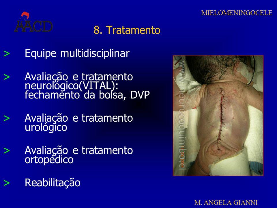 8. Tratamento Equipe multidisciplinar. Avaliação e tratamento neurológico(VITAL): fechamento da bolsa, DVP.