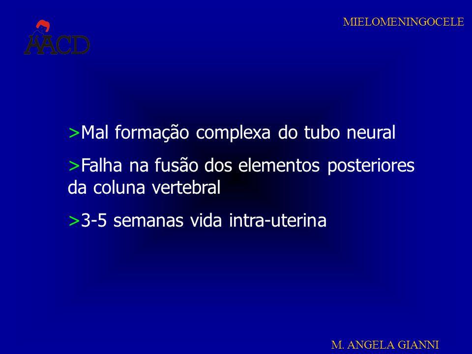 Mal formação complexa do tubo neural