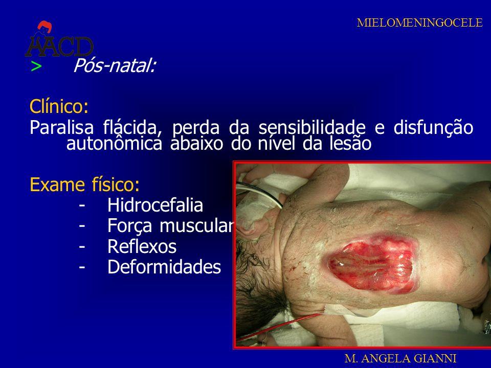 Pós-natal: Clínico: Paralisa flácida, perda da sensibilidade e disfunção autonômica abaixo do nível da lesão.