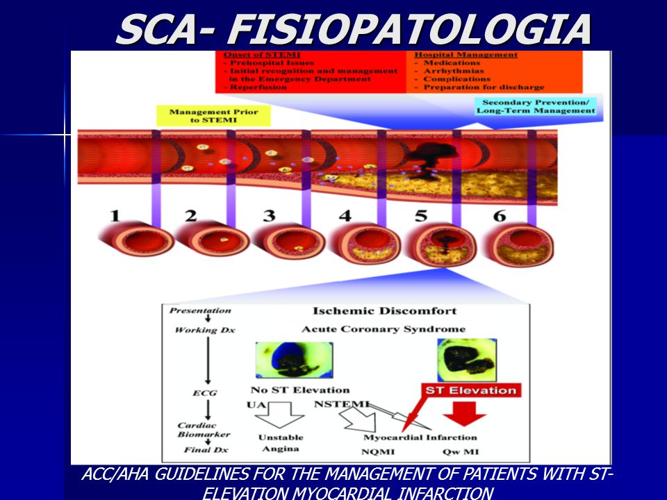 SCA- FISIOPATOLOGIA ACC/AHA GUIDELINES FOR THE MANAGEMENT OF PATIENTS WITH ST-ELEVATION MYOCARDIAL INFARCTION.