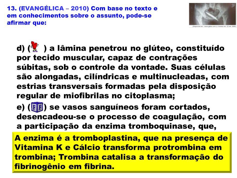 13. (EVANGÉLICA – 2010) Com base no texto e em conhecimentos sobre o assunto, pode-se afirmar que: