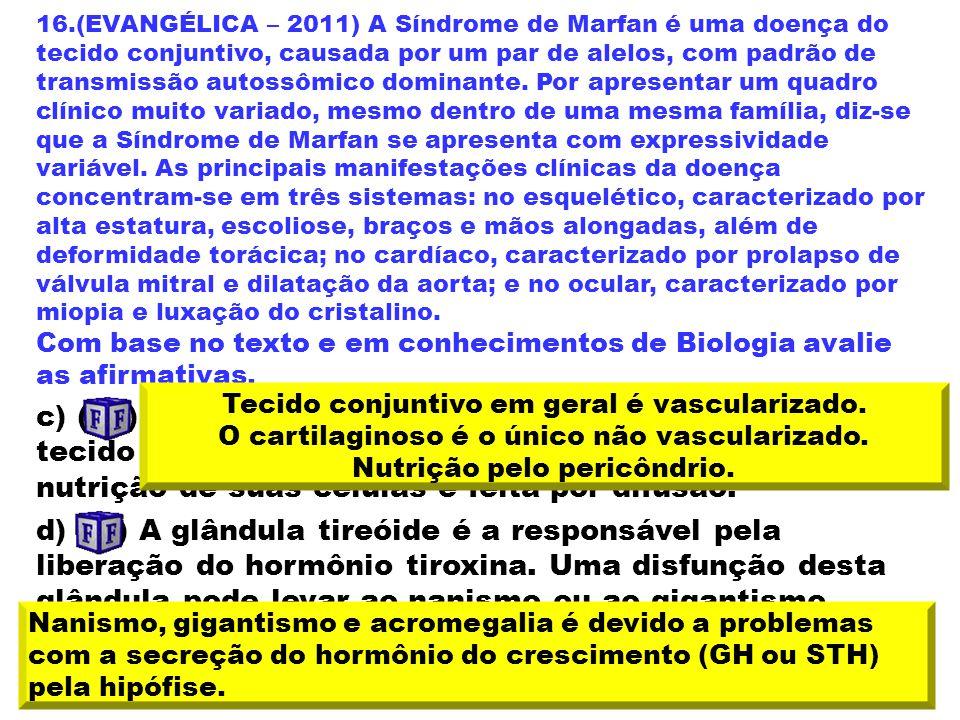 16.(EVANGÉLICA – 2011) A Síndrome de Marfan é uma doença do tecido conjuntivo, causada por um par de alelos, com padrão de transmissão autossômico dominante. Por apresentar um quadro clínico muito variado, mesmo dentro de uma mesma família, diz-se que a Síndrome de Marfan se apresenta com expressividade variável. As principais manifestações clínicas da doença concentram-se em três sistemas: no esquelético, caracterizado por alta estatura, escoliose, braços e mãos alongadas, além de deformidade torácica; no cardíaco, caracterizado por prolapso de válvula mitral e dilatação da aorta; e no ocular, caracterizado por miopia e luxação do cristalino.