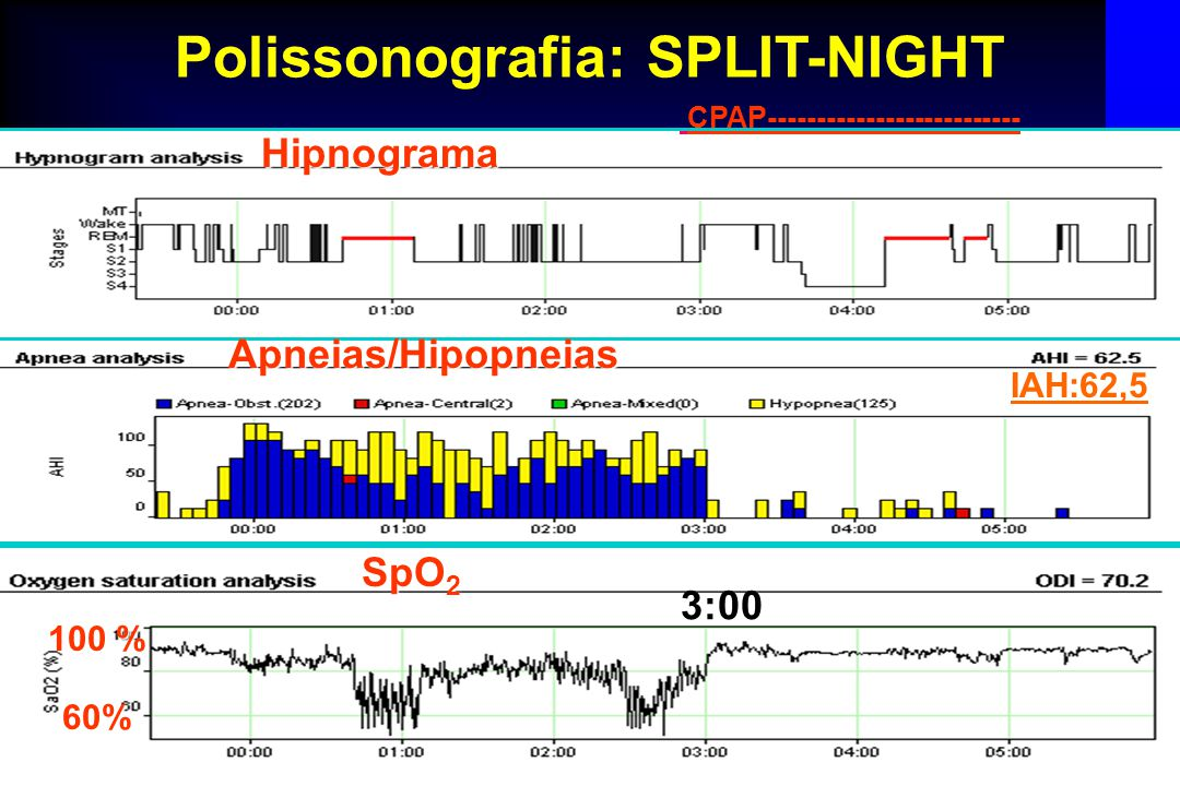Polissonografia: SPLIT-NIGHT