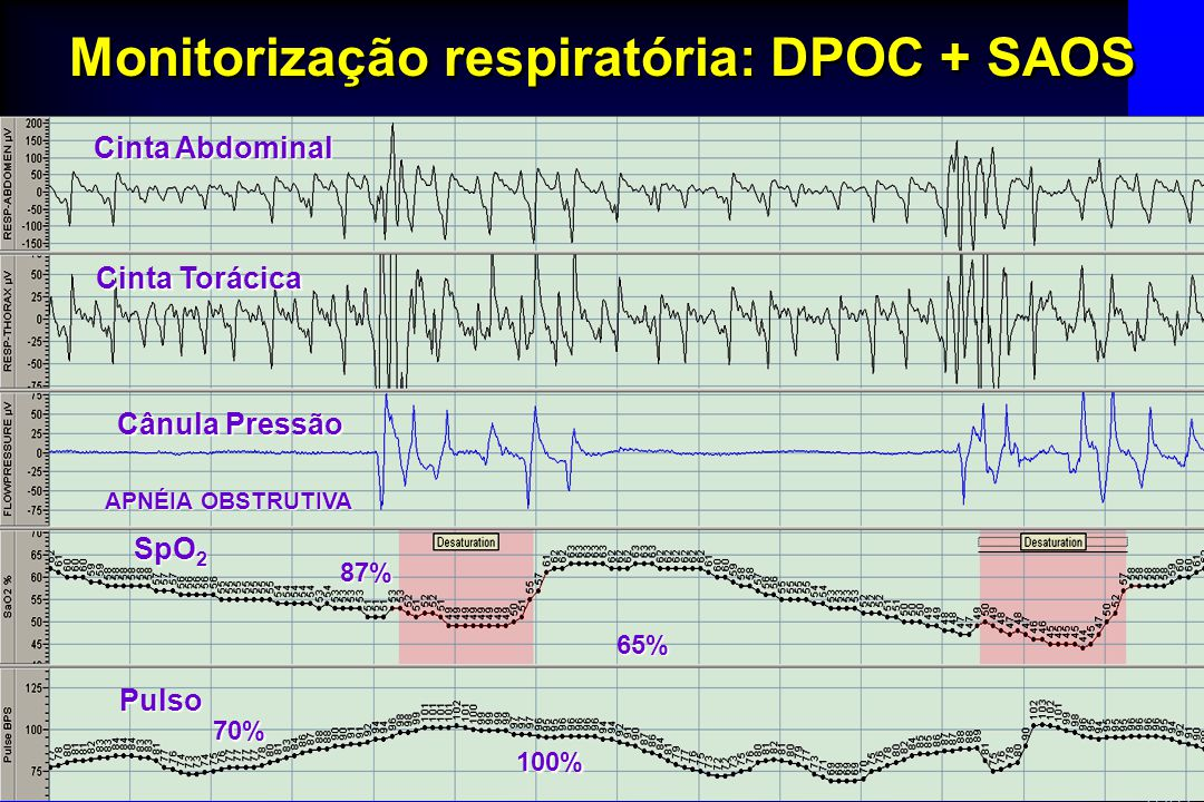Monitorização respiratória: DPOC + SAOS