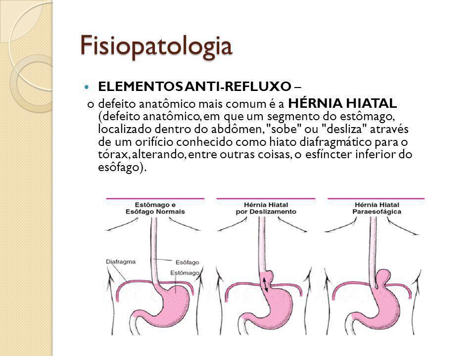Fisiopatologia ELEMENTOS ANTI-REFLUXO –