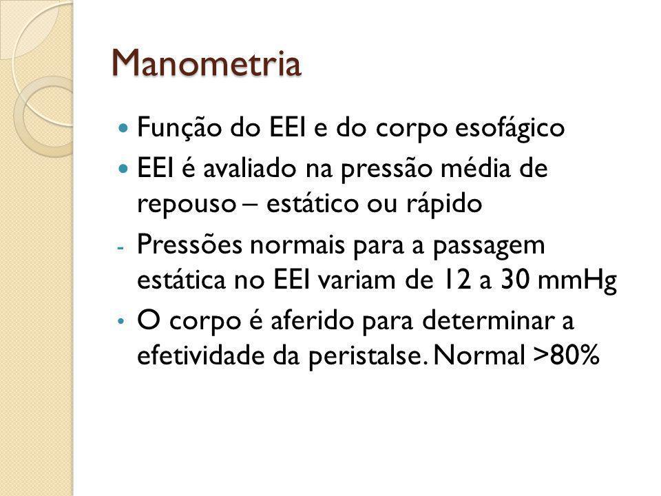 Manometria Função do EEI e do corpo esofágico