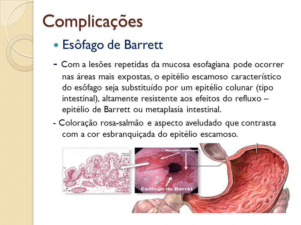Complicações Esôfago de Barrett