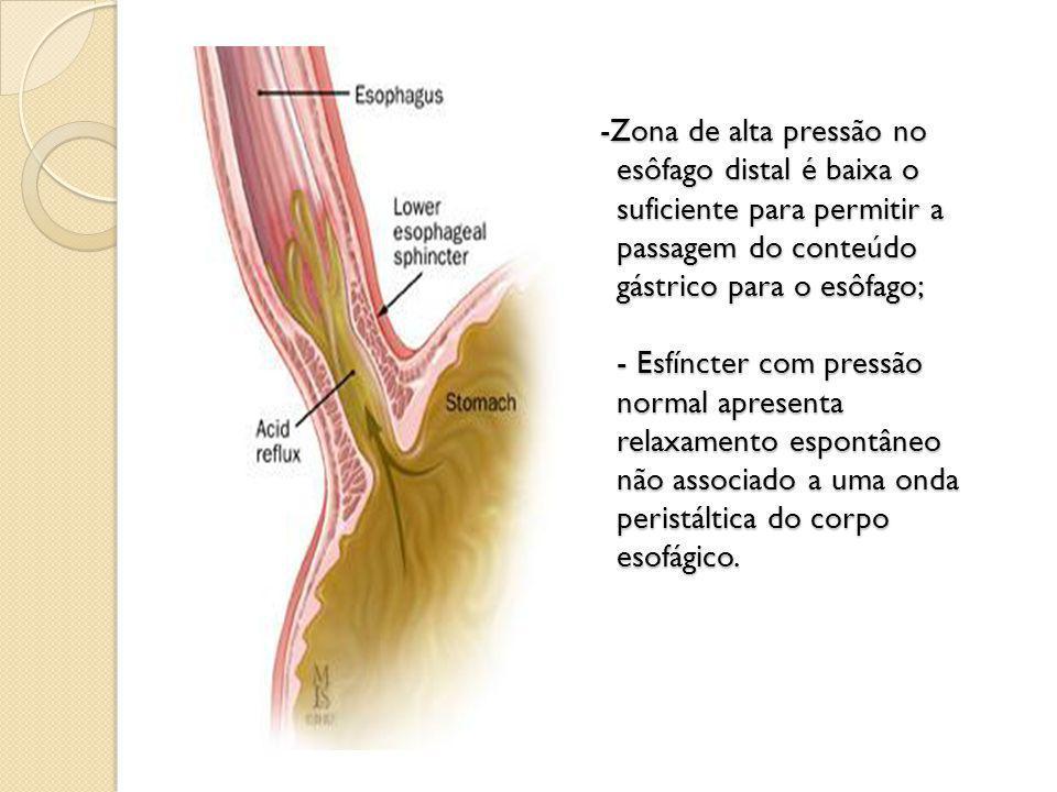 -Zona de alta pressão no esôfago distal é baixa o suficiente para permitir a passagem do conteúdo gástrico para o esôfago; - Esfíncter com pressão normal apresenta relaxamento espontâneo não associado a uma onda peristáltica do corpo esofágico.