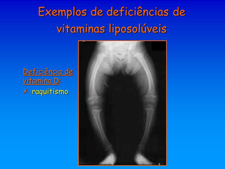 Exemplos de deficiências de vitaminas liposolúveis