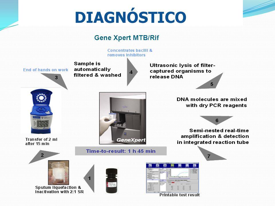 DIAGNÓSTICO Gene Xpert MTB/Rif