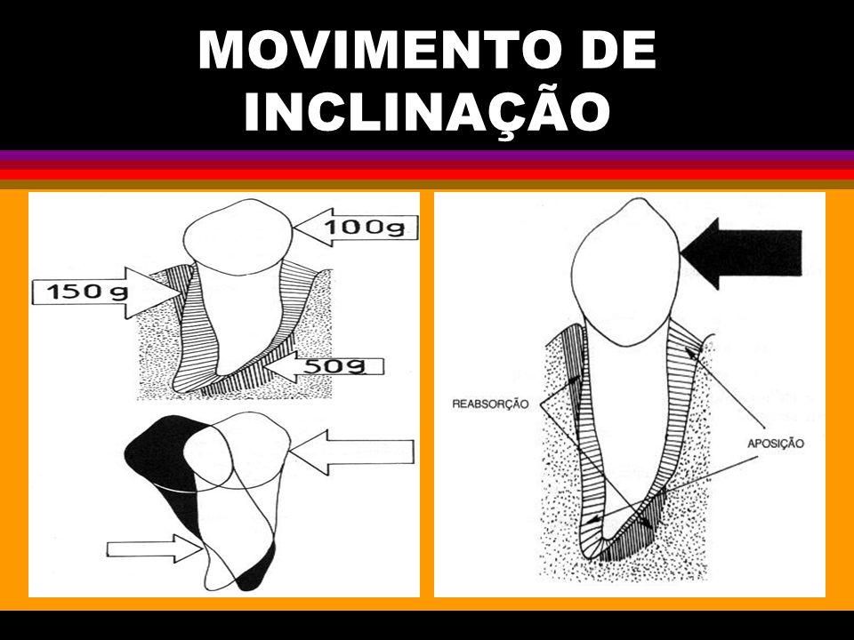 MOVIMENTO DE INCLINAÇÃO