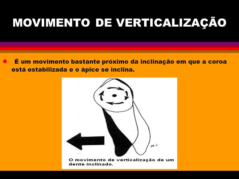 MOVIMENTO DE VERTICALIZAÇÃO