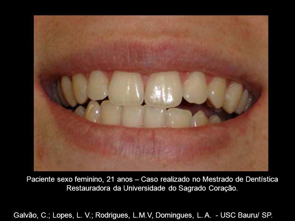 G Paciente sexo feminino, 21 anos – Caso realizado no Mestrado de Dentística Restauradora da Universidade do Sagrado Coração.
