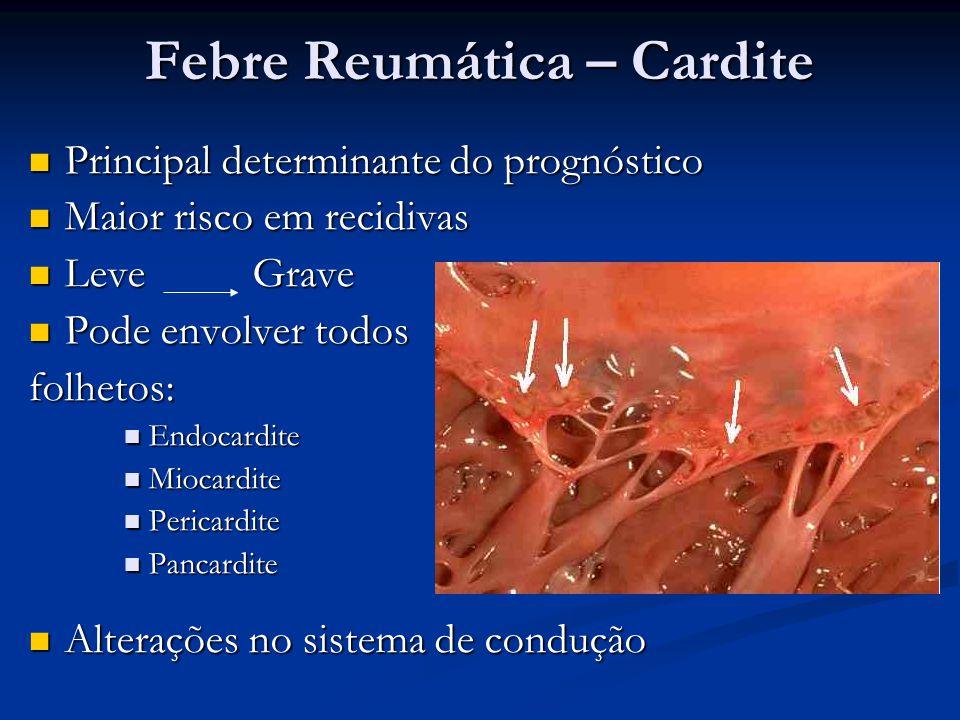 Febre Reumática – Cardite