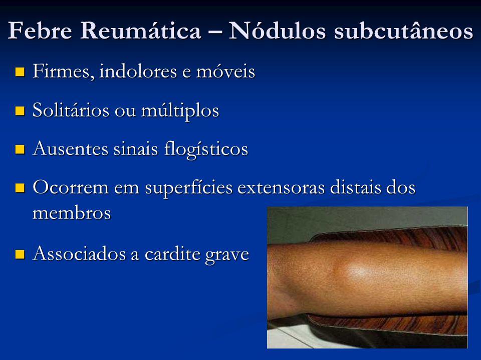 Febre Reumática – Nódulos subcutâneos