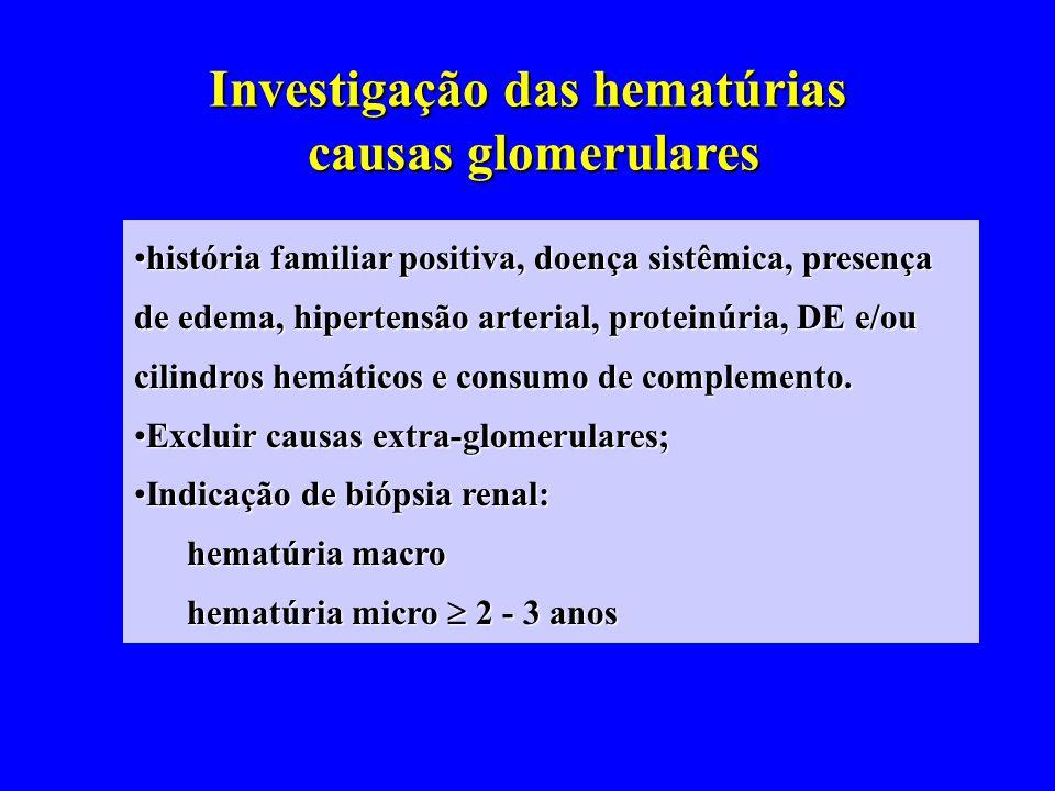 Investigação das hematúrias causas glomerulares