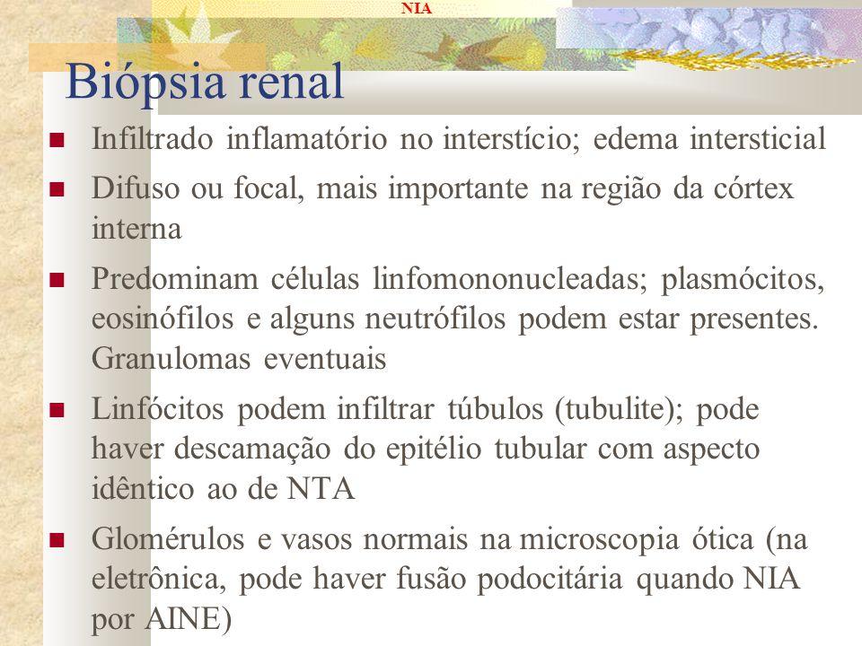 Biópsia renal Infiltrado inflamatório no interstício; edema intersticial. Difuso ou focal, mais importante na região da córtex interna.