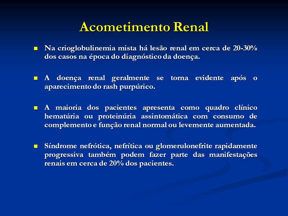 Acometimento Renal Na crioglobulinemia mista há lesão renal em cerca de 20-30% dos casos na época do diagnóstico da doença.