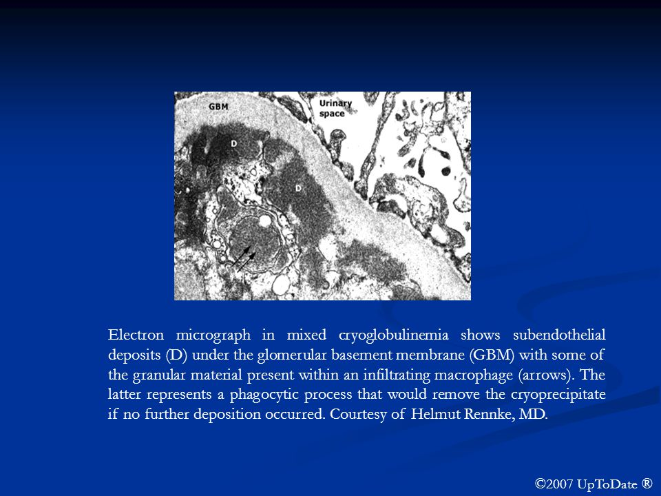 Electron micrograph in mixed cryoglobulinemia shows subendothelial deposits (D) under the glomerular basement membrane (GBM) with some of the granular material present within an infiltrating macrophage (arrows). The latter represents a phagocytic process that would remove the cryoprecipitate if no further deposition occurred. Courtesy of Helmut Rennke, MD.