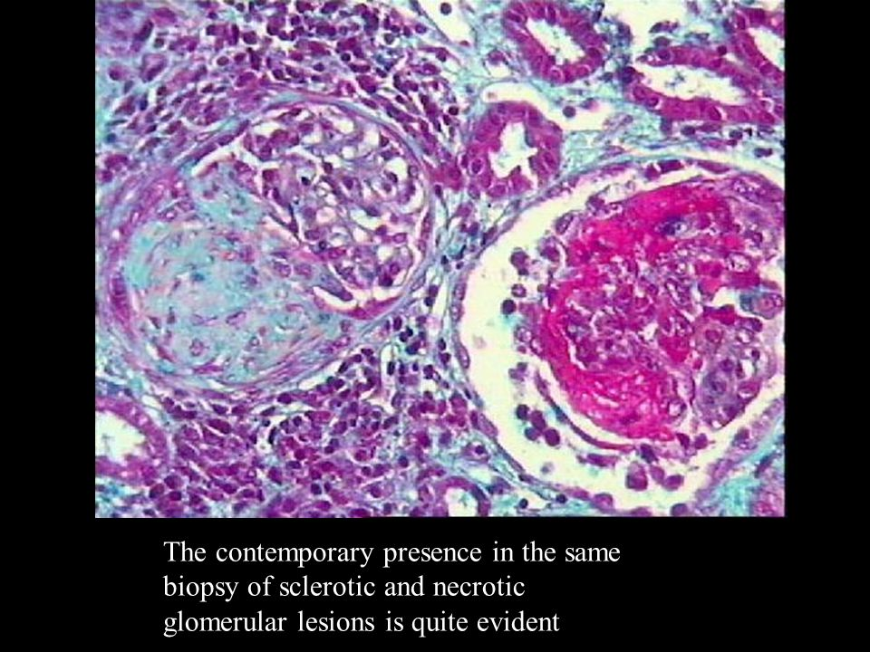 The contemporary presence in the same biopsy of sclerotic and necrotic glomerular lesions is quite evident