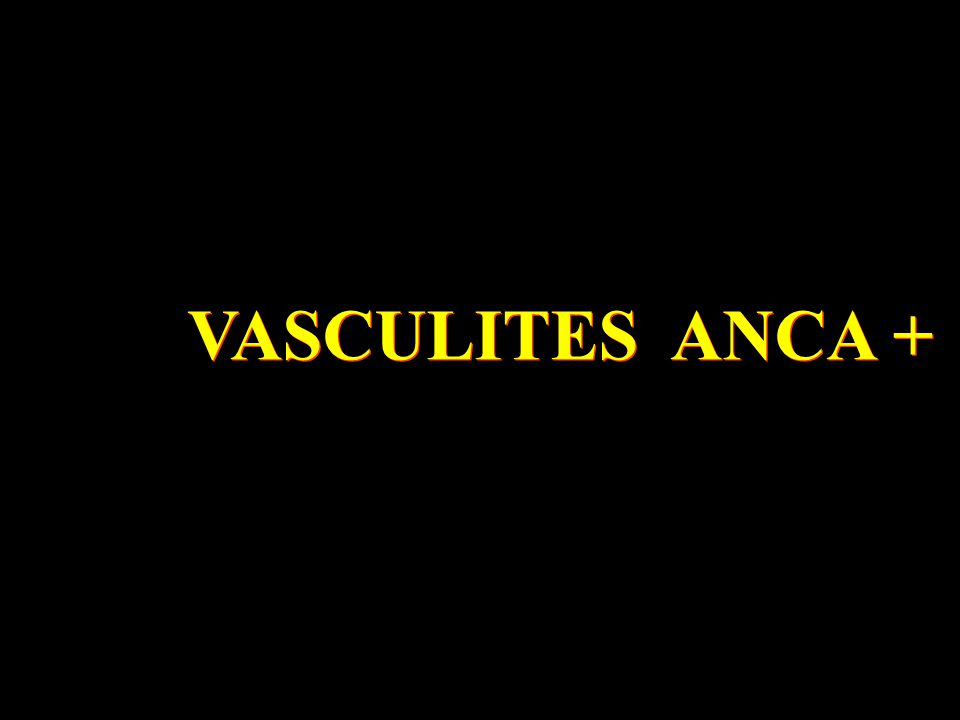 VASCULITES ANCA +