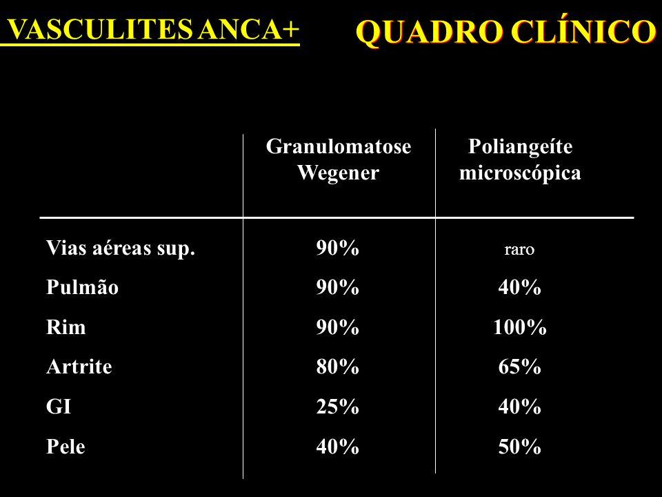 QUADRO CLÍNICO VASCULITES ANCA+