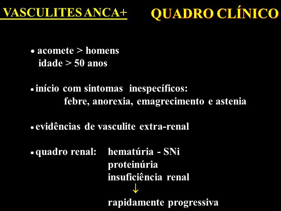 QUADRO CLÍNICO VASCULITES ANCA+ idade > 50 anos 
