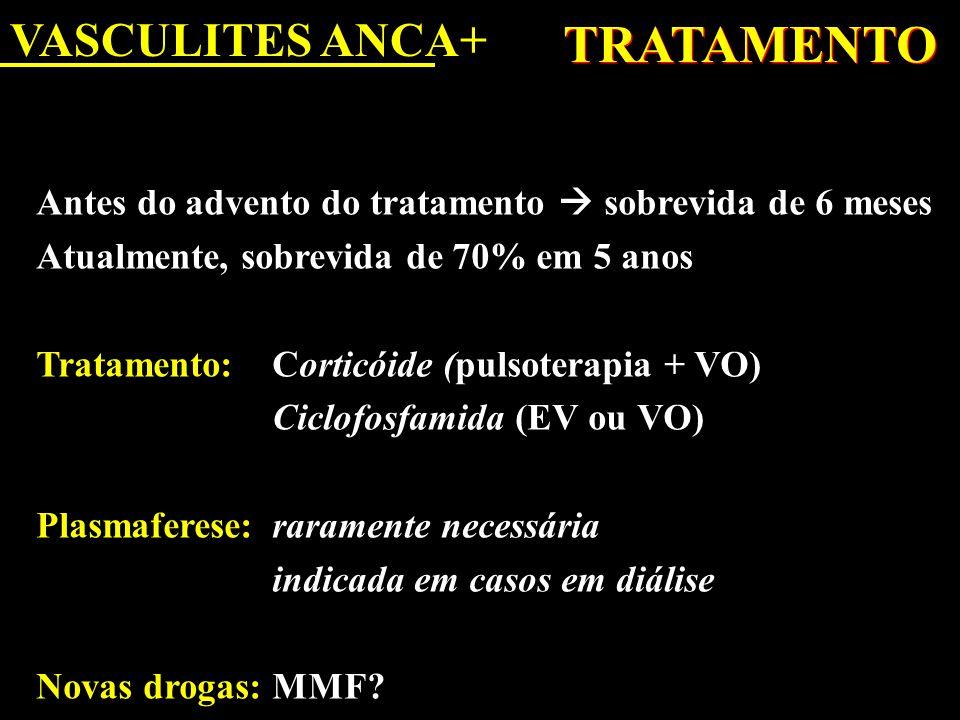 TRATAMENTO VASCULITES ANCA+