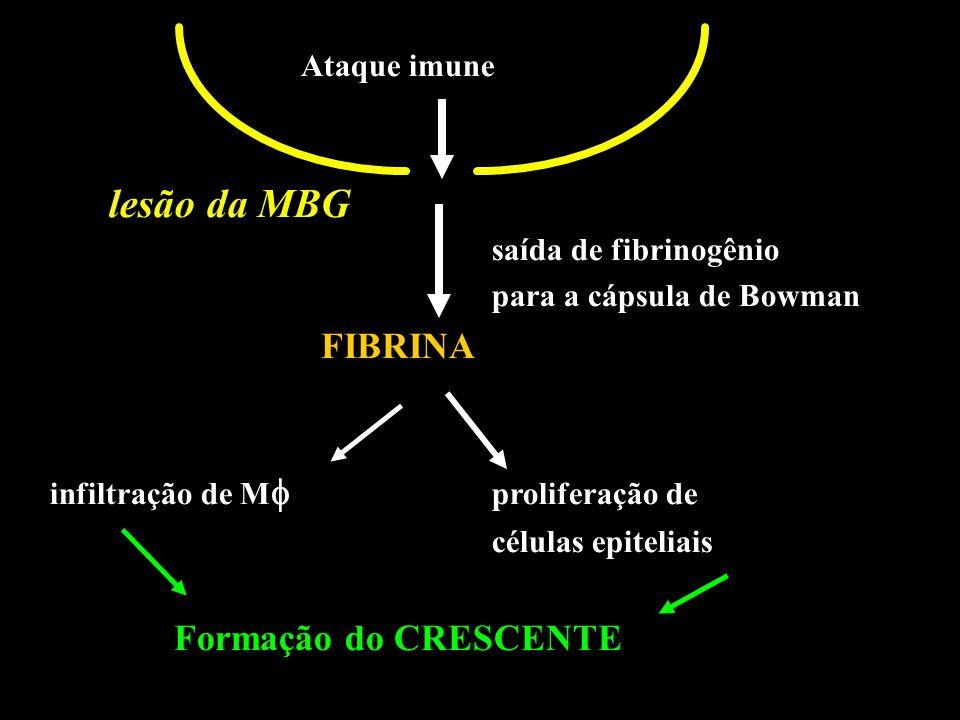 lesão da MBG FIBRINA Ataque imune saída de fibrinogênio