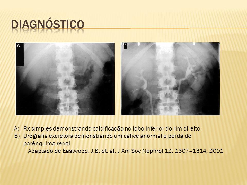 Diagnóstico Rx simples demonstrando calcificação no lobo inferior do rim direito.