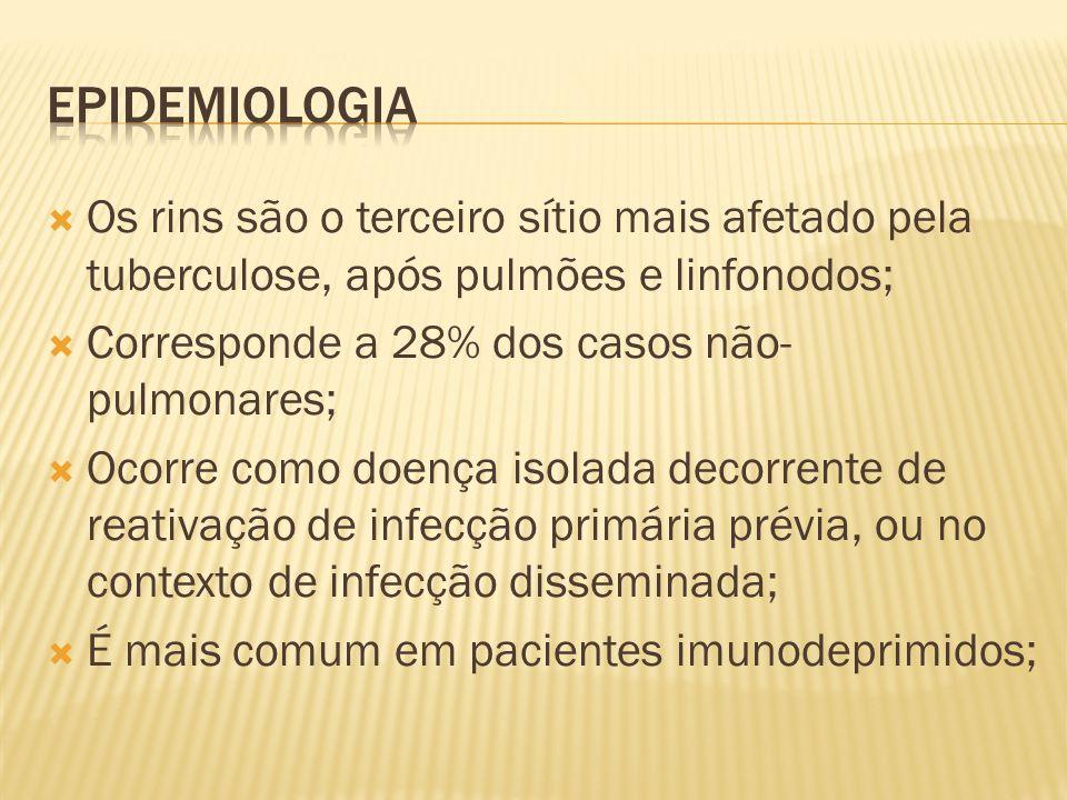 Epidemiologia Os rins são o terceiro sítio mais afetado pela tuberculose, após pulmões e linfonodos;