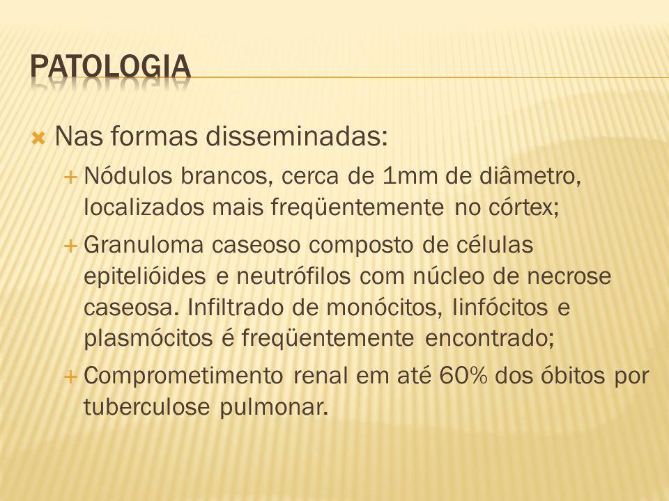 Patologia Nas formas disseminadas: