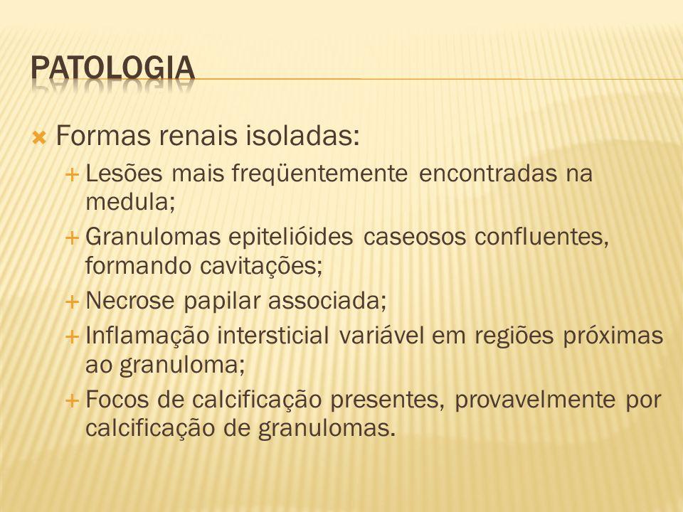 Patologia Formas renais isoladas:
