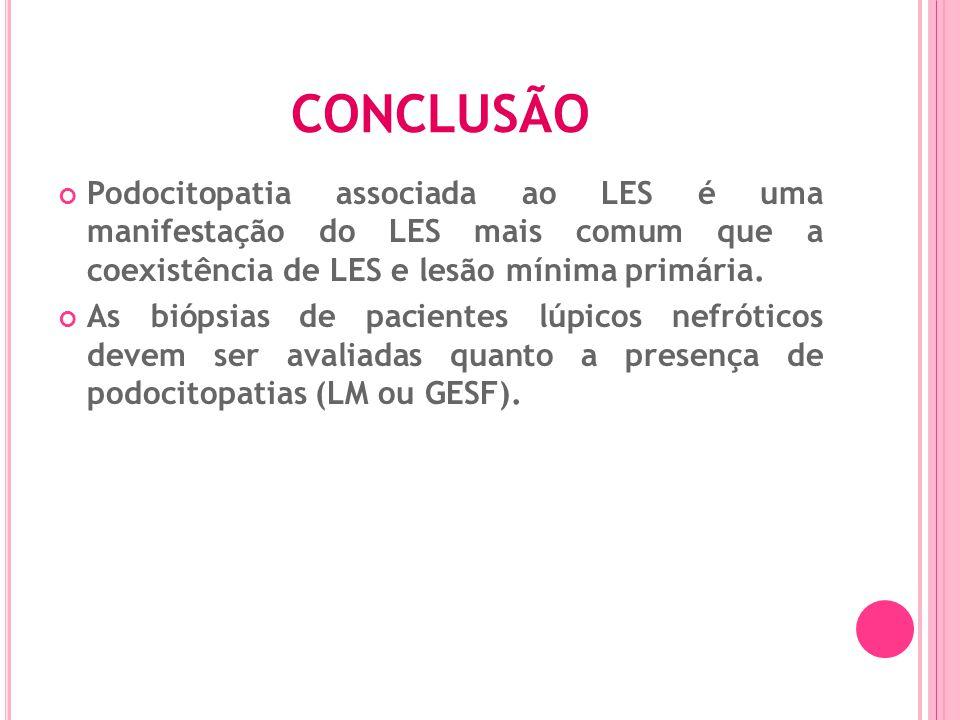 CONCLUSÃO Podocitopatia associada ao LES é uma manifestação do LES mais comum que a coexistência de LES e lesão mínima primária.