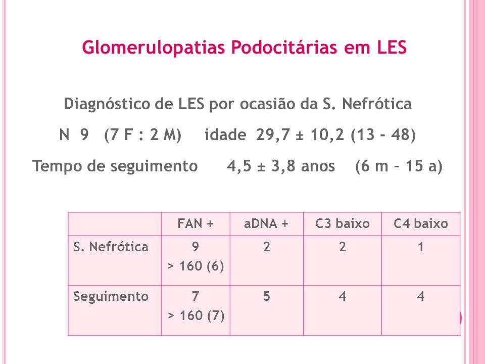 Glomerulopatias Podocitárias em LES